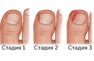Стадии врастания ногтя