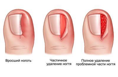 Хирургическое удаление вросшего ногтя